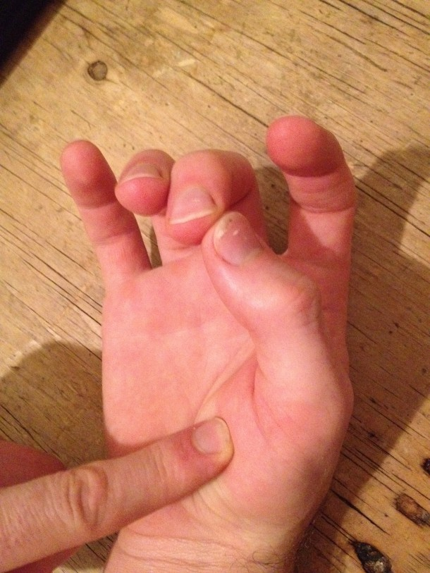 Not to be confused with the Five Fingers of Death. Unless you have salmonella hands.